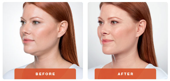 Kybella Fat Injections