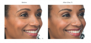 Botox Service in Virginia - 1