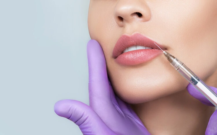 How Long Do Lip Fillers Last After Perfectly Plumping?